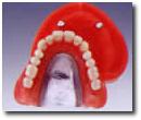 磁性アタッチメント(総入れ歯)