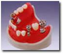 磁性アタッチメント(部分入れ歯)
