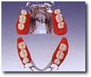 金属床(部分入れ歯)